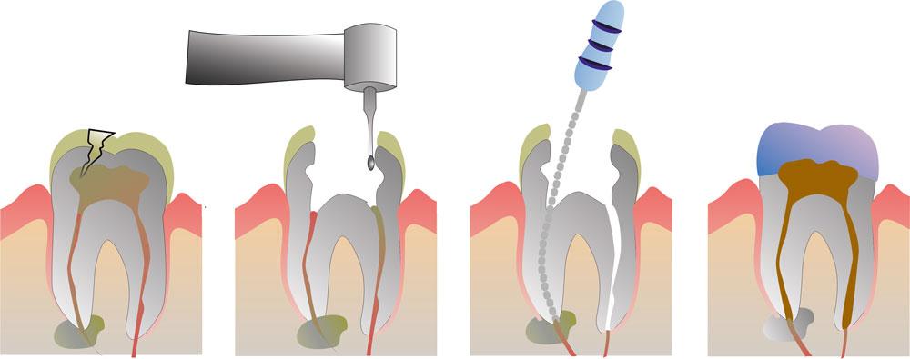 Šaknų kanalų gydymas
